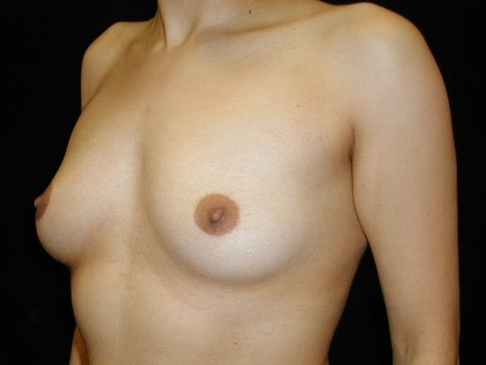Breast Augmentation Gallery - Patient 42751486 - Image 3