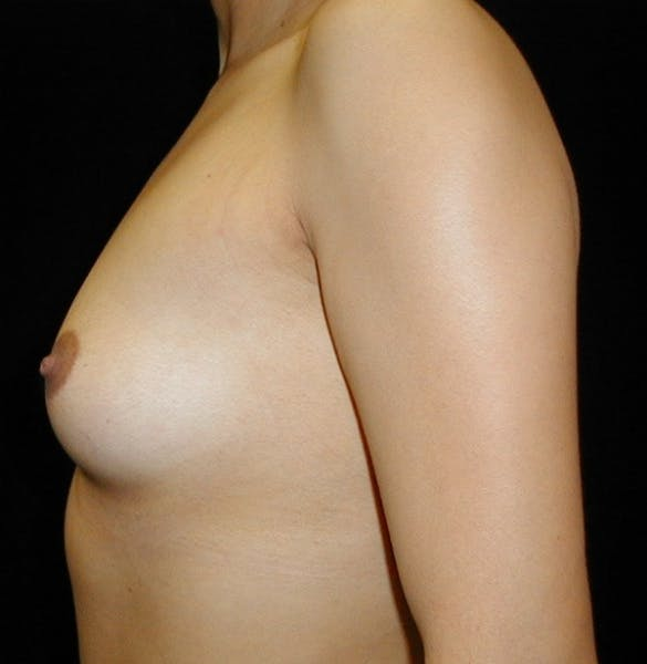 Breast Augmentation Gallery - Patient 42751486 - Image 5