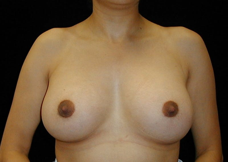 Breast Augmentation Gallery - Patient 42751486 - Image 2