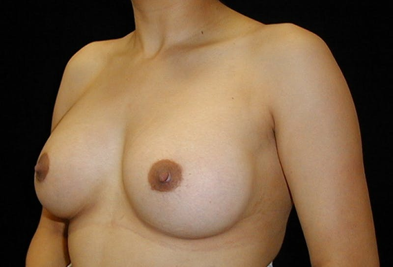 Breast Augmentation Gallery - Patient 42751486 - Image 4