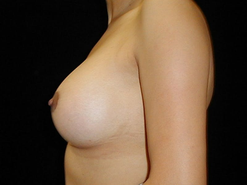 Breast Augmentation Gallery - Patient 42751486 - Image 6