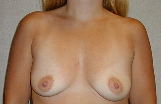 Breast Augmentation Gallery - Patient 42751488 - Image 1