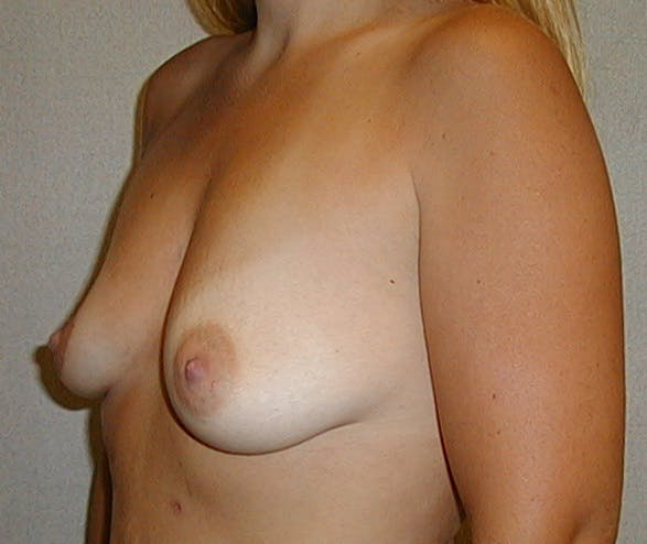 Breast Augmentation Gallery - Patient 42751488 - Image 3