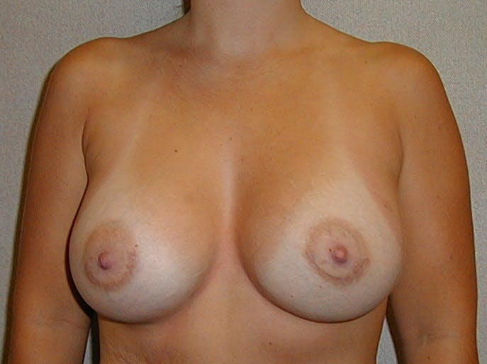 Breast Augmentation Gallery - Patient 42751488 - Image 2