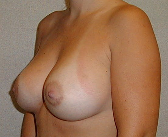 Breast Augmentation Gallery - Patient 42751488 - Image 4