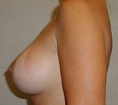 Breast Augmentation Gallery - Patient 42751488 - Image 6
