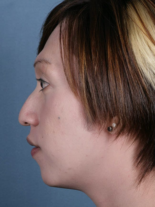 Rhinoplasty Gallery - Patient 51852510 - Image 1