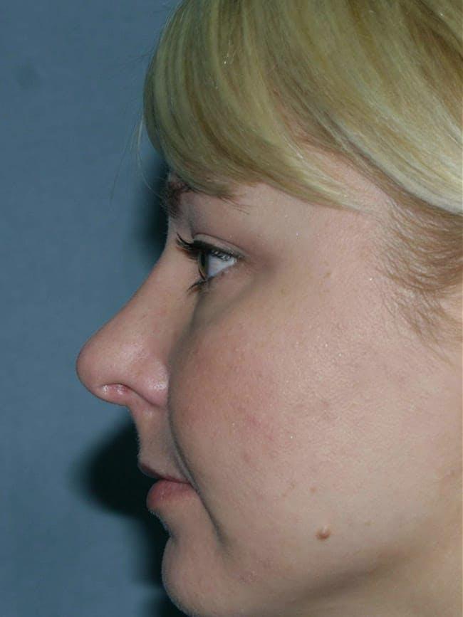 Rhinoplasty Gallery - Patient 51852505 - Image 1