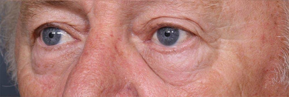 Blepharoplasty Gallery - Patient 42751408 - Image 3