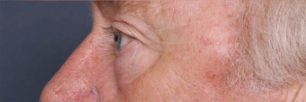 Blepharoplasty Gallery - Patient 42751408 - Image 5