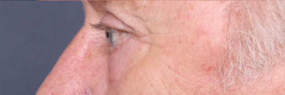 Blepharoplasty Gallery - Patient 42751408 - Image 6