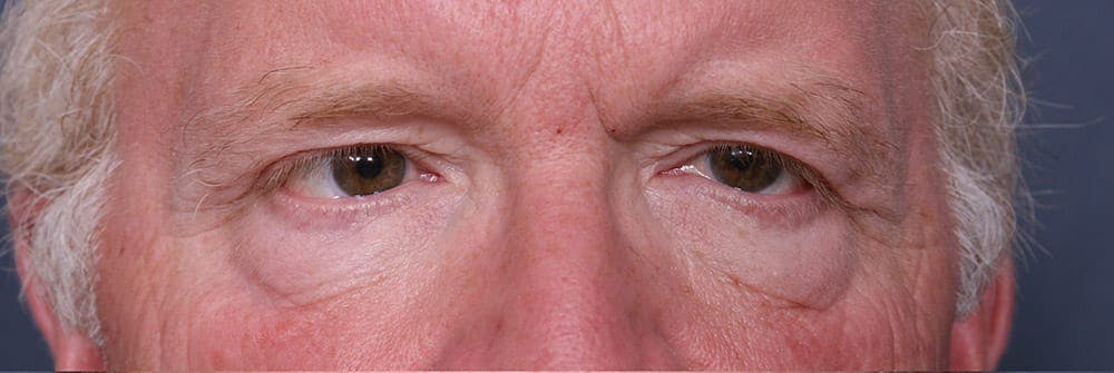 Blepharoplasty Gallery - Patient 42751411 - Image 1