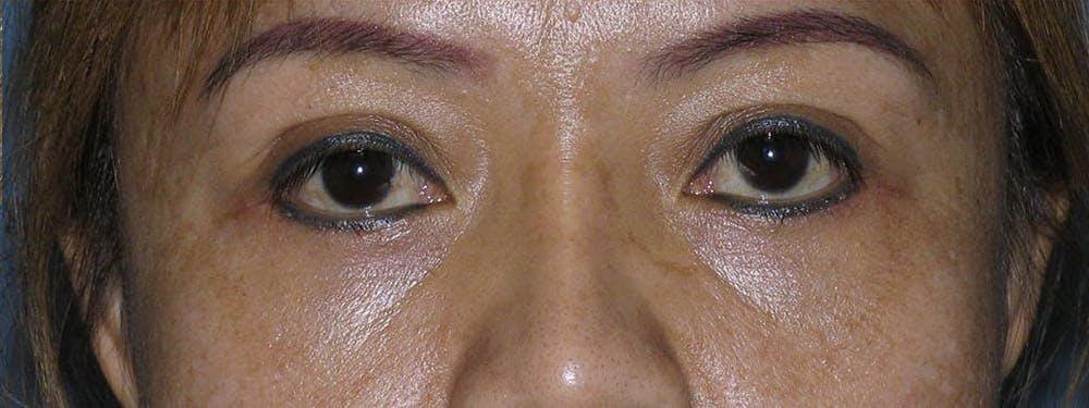 Blepharoplasty Gallery - Patient 42751409 - Image 2