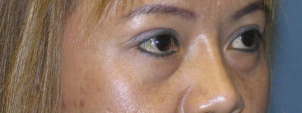 Blepharoplasty Gallery - Patient 42751409 - Image 3