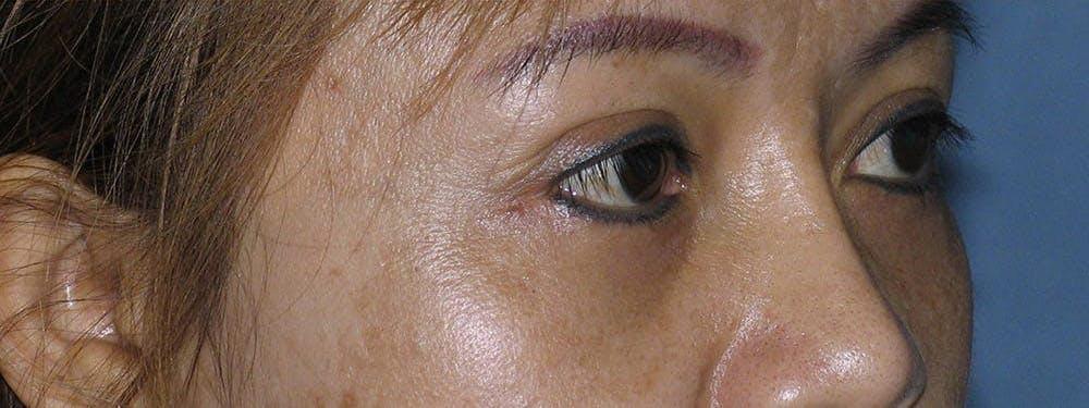 Blepharoplasty Gallery - Patient 42751409 - Image 4