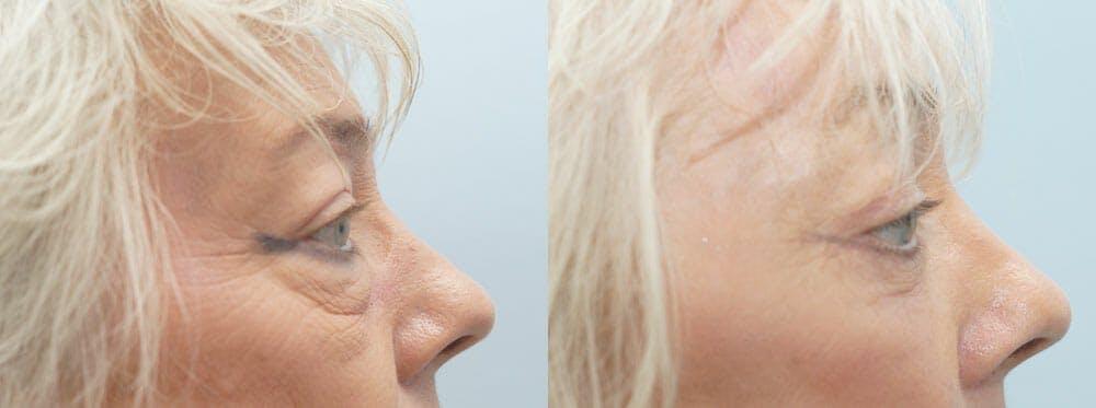 Brow Lift Gallery - Patient 47121965 - Image 3