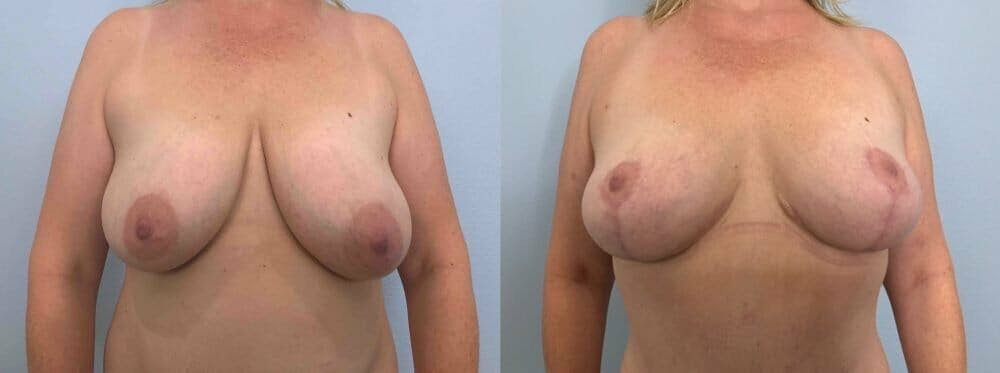 Breast Reduction Gallery - Patient 47122190 - Image 1