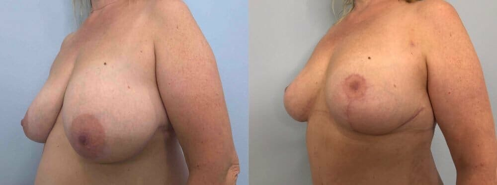 Breast Reduction Gallery - Patient 47122190 - Image 2