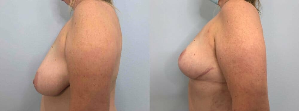 Breast Reduction Gallery - Patient 47122190 - Image 3