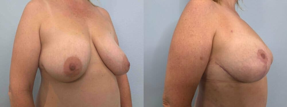 Breast Reduction Gallery - Patient 47122190 - Image 4