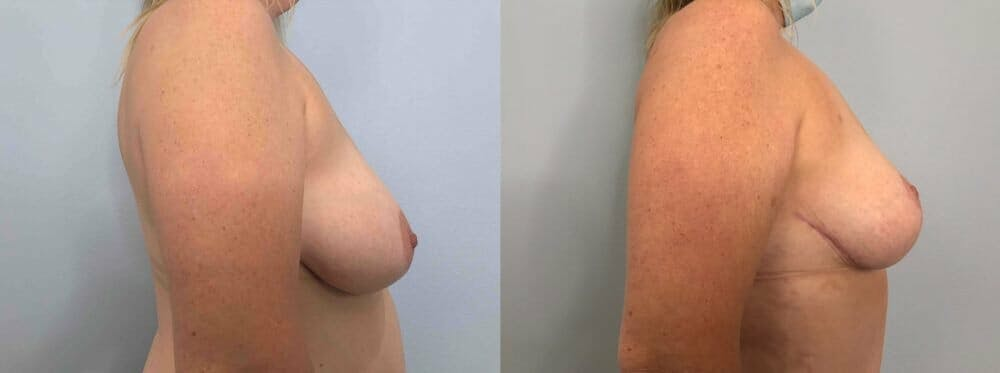 Breast Reduction Gallery - Patient 47122190 - Image 5