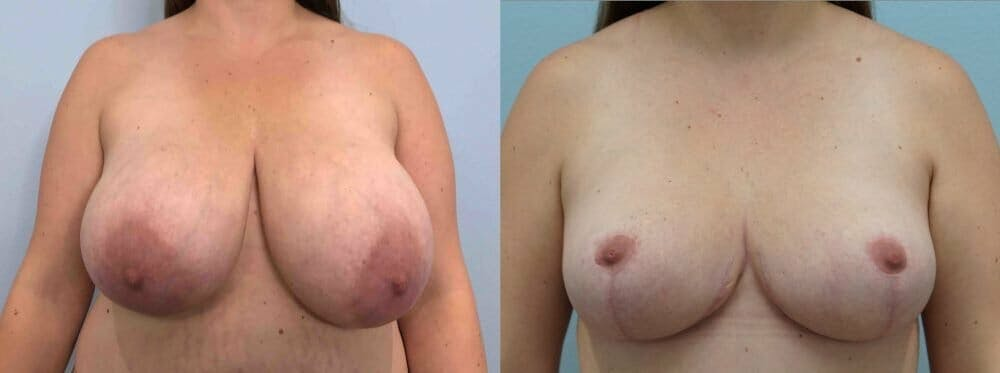Breast Reduction Gallery - Patient 47122252 - Image 1