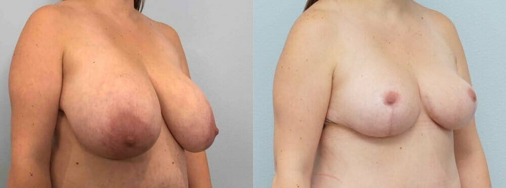 Breast Reduction Gallery - Patient 47122252 - Image 2