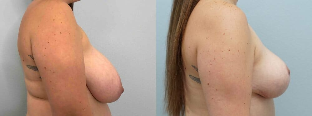Breast Reduction Gallery - Patient 47122252 - Image 3