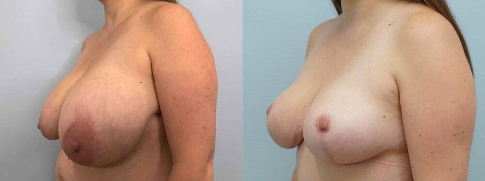 Breast Reduction Gallery - Patient 47122252 - Image 4