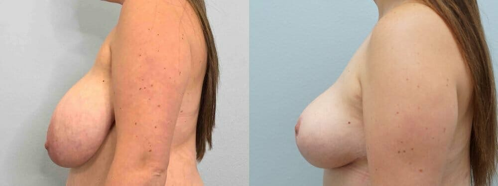 Breast Reduction Gallery - Patient 47122252 - Image 5