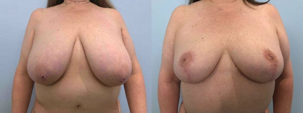 Breast Reduction Gallery - Patient 47122271 - Image 1