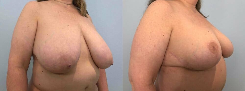 Breast Reduction Gallery - Patient 47122271 - Image 2