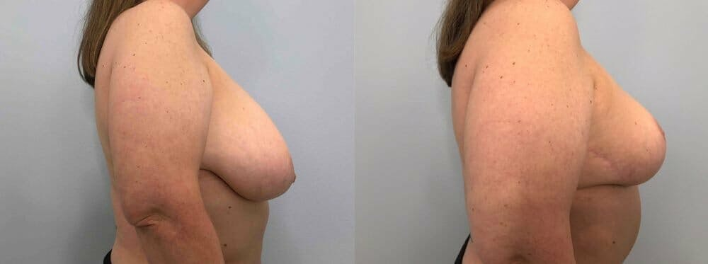 Breast Reduction Gallery - Patient 47122271 - Image 3