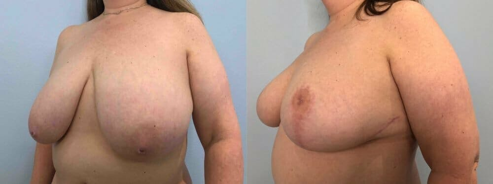 Breast Reduction Gallery - Patient 47122271 - Image 4