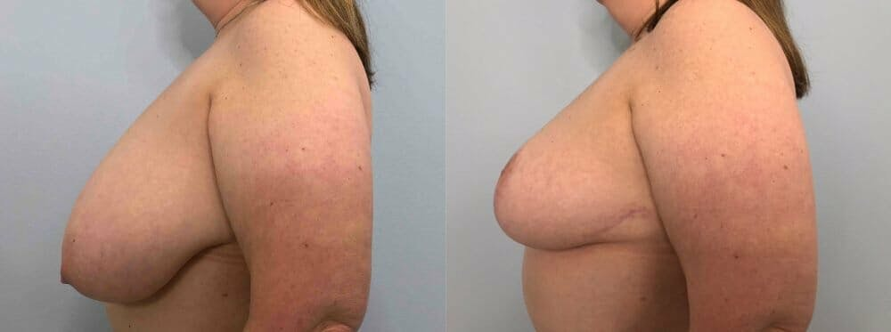 Breast Reduction Gallery - Patient 47122271 - Image 5