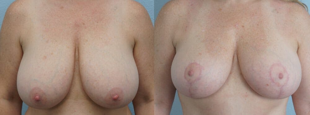 Breast Reduction Gallery - Patient 47122313 - Image 1