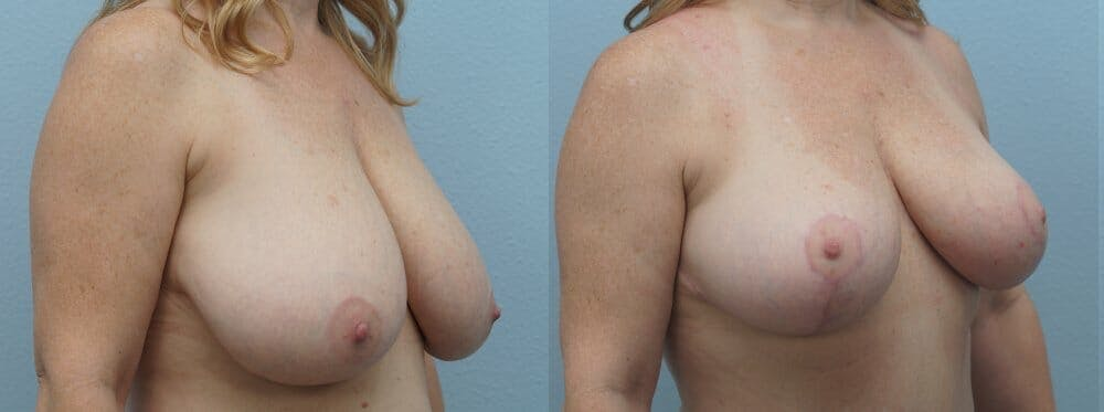 Breast Reduction Gallery - Patient 47122313 - Image 2