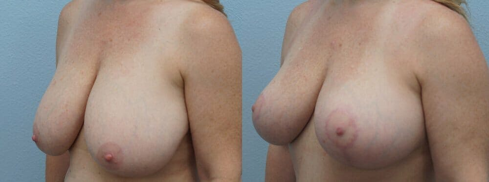 Breast Reduction Gallery - Patient 47122313 - Image 3