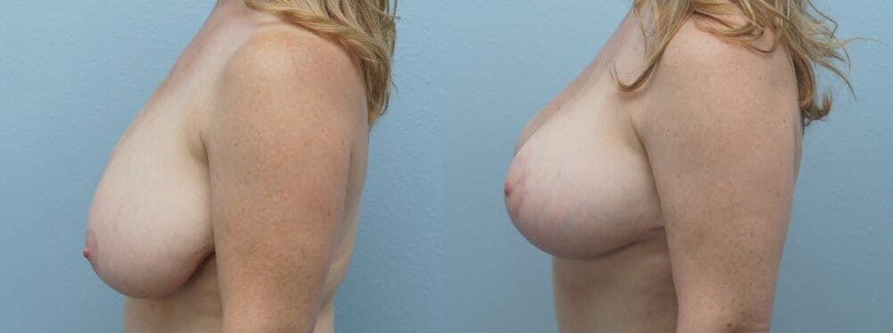 Breast Reduction Gallery - Patient 47122313 - Image 4