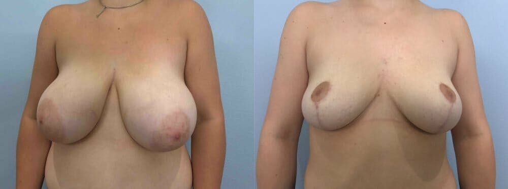 Breast Reduction Gallery - Patient 47122335 - Image 1