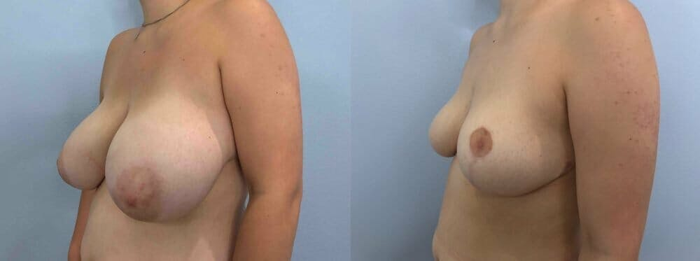Breast Reduction Gallery - Patient 47122335 - Image 2