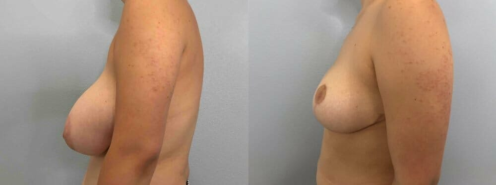 Breast Reduction Gallery - Patient 47122335 - Image 3
