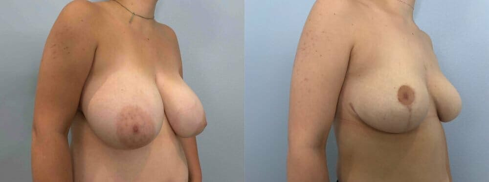 Breast Reduction Gallery - Patient 47122335 - Image 4