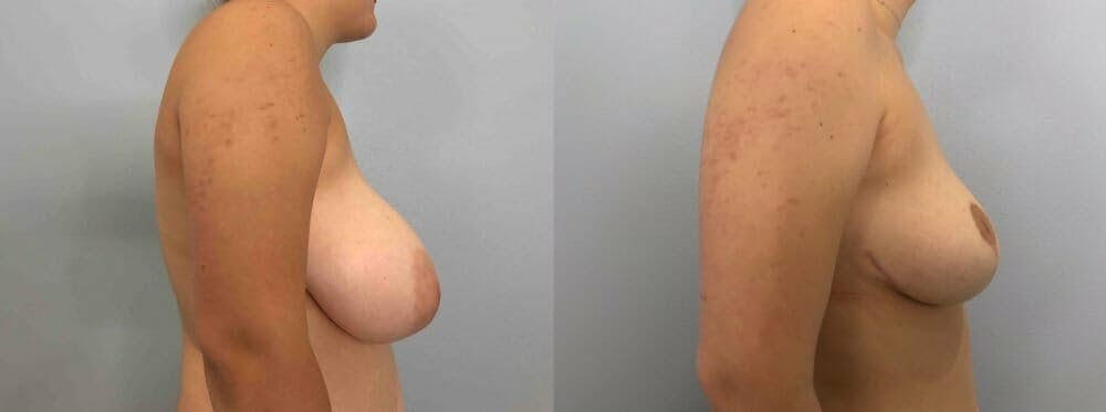 Breast Reduction Gallery - Patient 47122335 - Image 5