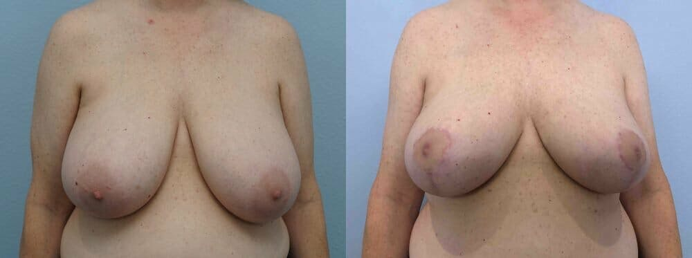 Breast Reduction Gallery - Patient 47122394 - Image 1