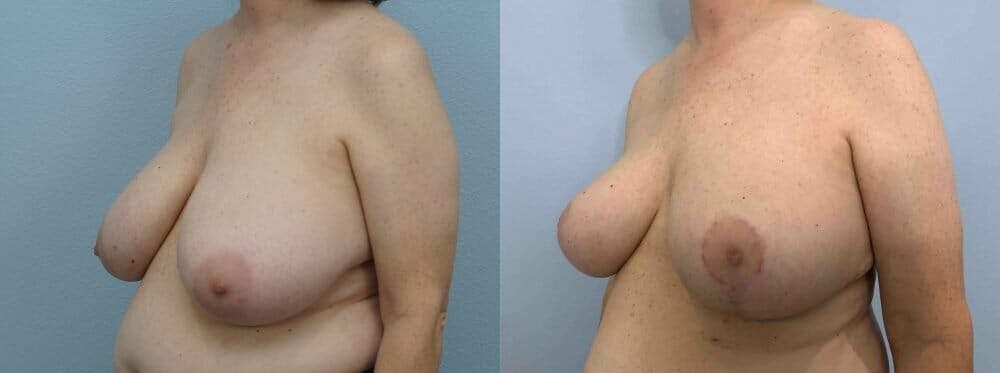 Breast Reduction Gallery - Patient 47122394 - Image 2
