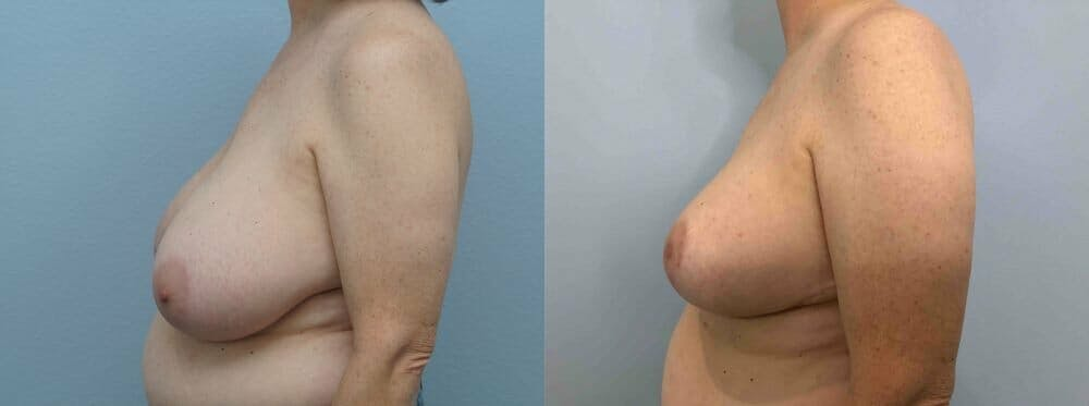 Breast Reduction Gallery - Patient 47122394 - Image 3