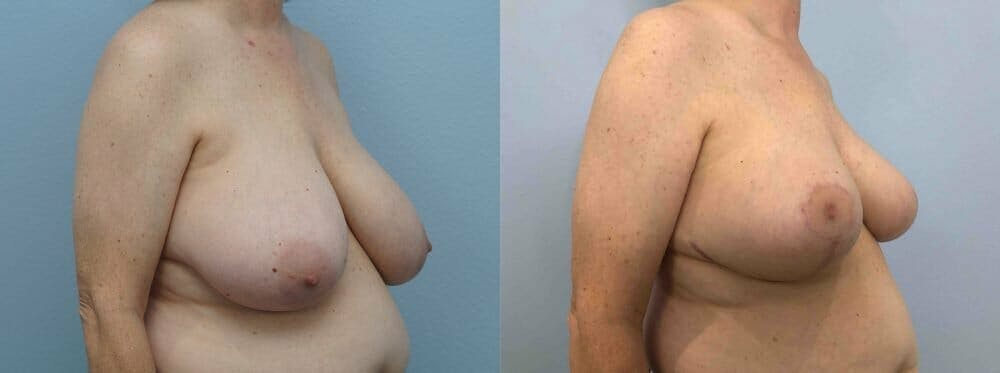 Breast Reduction Gallery - Patient 47122394 - Image 4