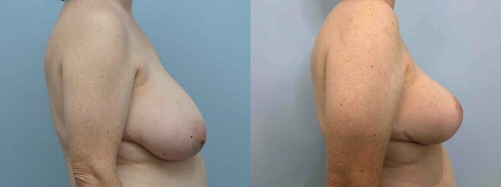 Breast Reduction Gallery - Patient 47122394 - Image 5
