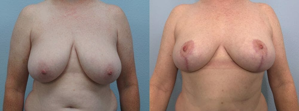 Breast Reduction Gallery - Patient 47122431 - Image 1